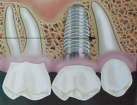 Dentistas en las palmas buscaprof las palmas - Dentistas en las palmas ...